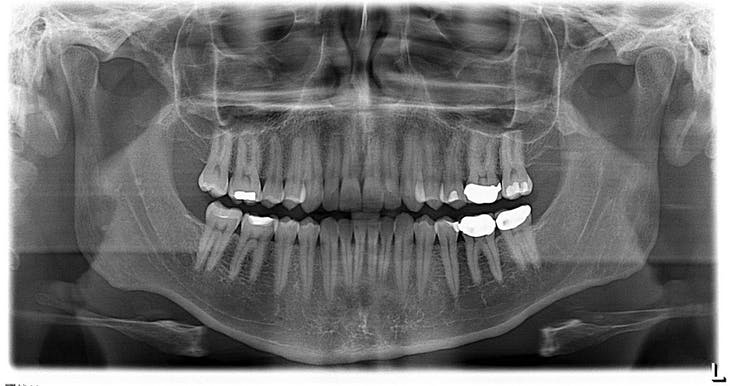 Visited the dentist today.  Here was my x-ray.  This was the first time I used this machine that I put my head into and it rotated around my head.