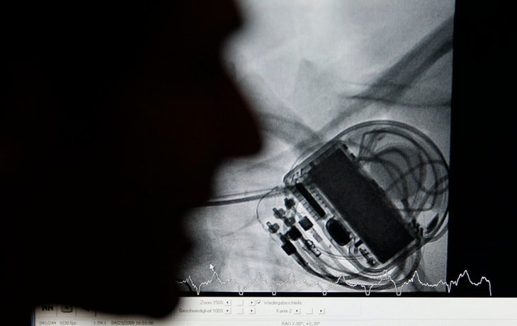 Doctor Bjoern Peters explains details of an X-ray picture on a monitor showing the world's first cardiac re-synchronisation therapy defibrillator device 'Consulta CRT-D', made by U.S. company Medtronic Inc., implanted to German patient Monique Pachalek at the German Heart Institute Berlin (DHZB) in Berlin, April 29, 2008. Pachalek is the first patient worldwide to have the device implanted on April 23. The product makes it possible to the hospital to communicate with the patient's pacemaker over a phone line.     REUTERS/Fabrizio Bensch (GERMANY) - BM2E44T14PX01
